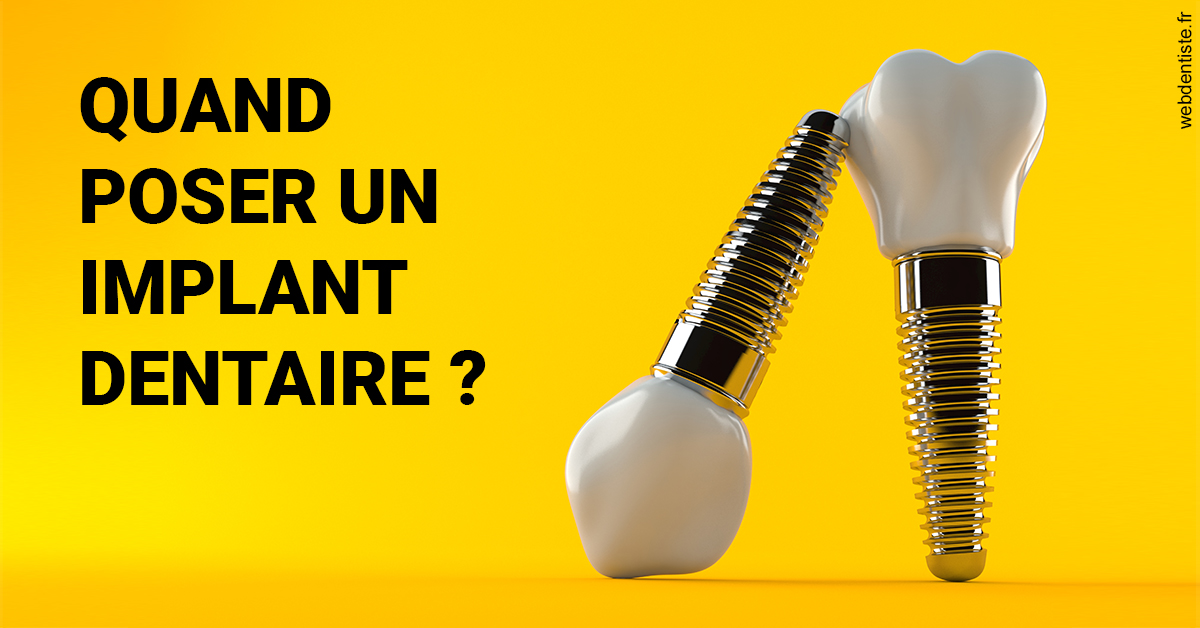 https://dr-normand-eric.chirurgiens-dentistes.fr/Les implants 2